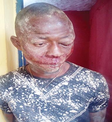 robber beaten benin edo state