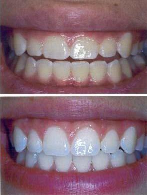Gingivectomy Periodontology Dental India Dental