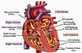 faktor penyebab penyakit jantung