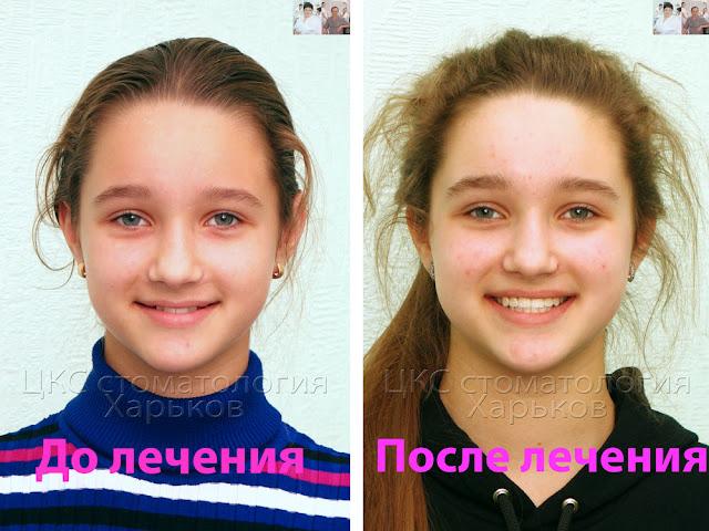 Лицо пациента до и после расширения челюстиа