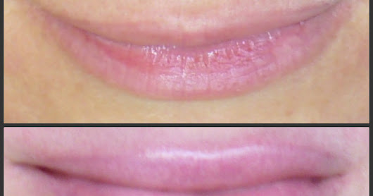 Before & After 7.2PH: AntiAging, 2 Years Detox Lifestyle: Naturally Fuller Lips