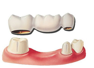 Răng đã lấy tủy có nên bọc răng sứ lại?