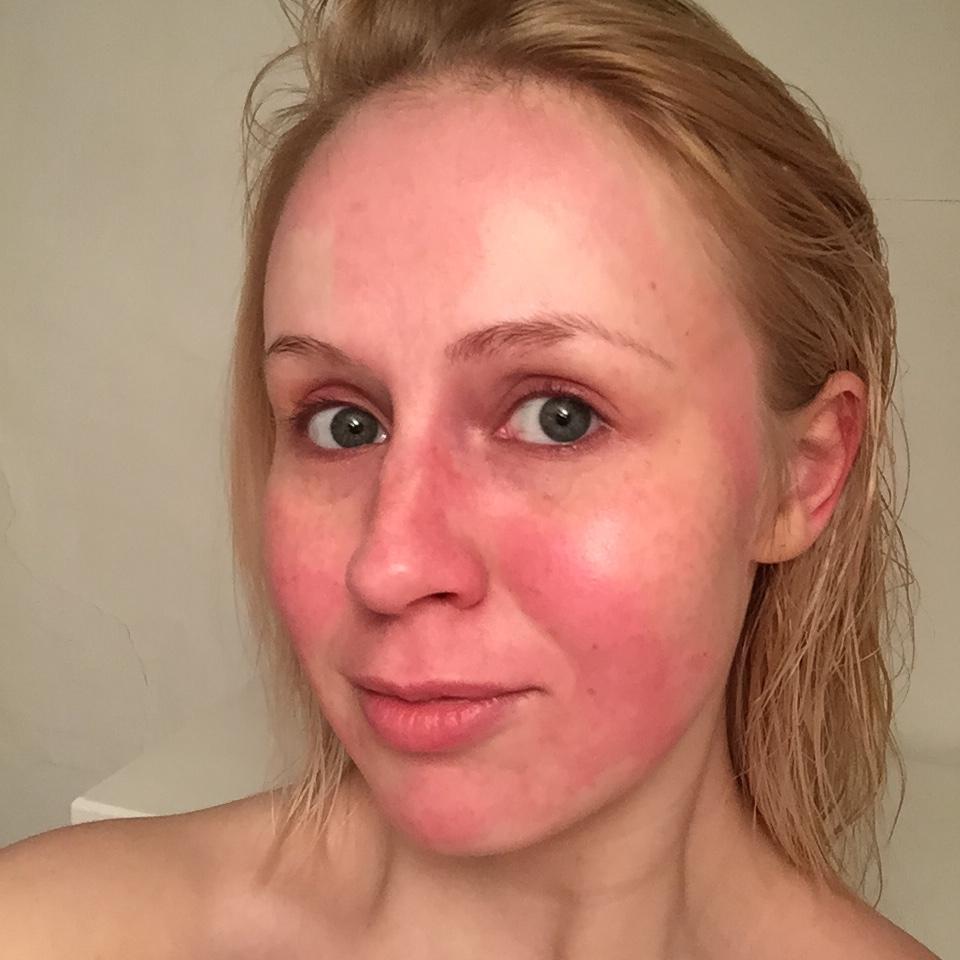 hiusväri allerginen reaktio oireet