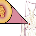 Here are the 6 Nutritious Foods That Can Destroy Breast Cysts Naturally