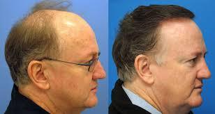 saç ekimi öncesi ve sonrası foto 28