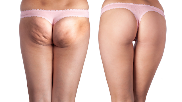 cellulite treatment malaysia