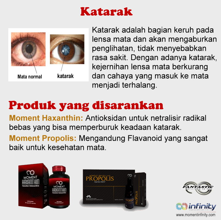 Pengobatan penyakit mata Katarak dengan produk Moment