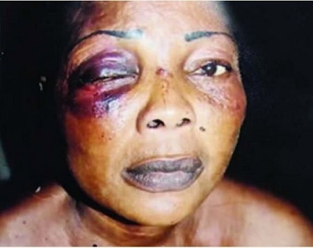 Housewife Loses Eye After Terrible Fight With 79-year-old Mother-in-law