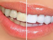 10 Cara Memutihkan Gigi yang Kuning Secara Alami