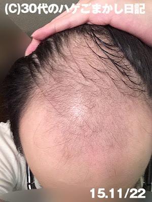 2015年11月22日育毛の様子