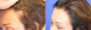 saç ekimi öncesi ve sonrası foto 23