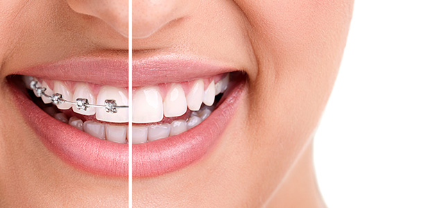 Know more about Early Orthodontic Treatment