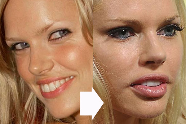Sophie Monk Plastic Surgery