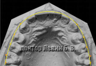форма зубного ряда