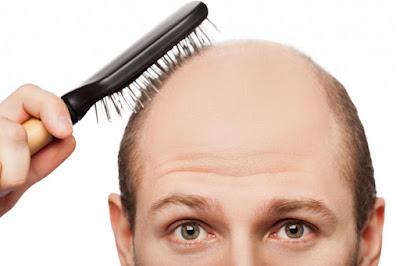 Rambut Rontok Bukan Kesalahan Sampo, Waspadai 7 Penyakit Ini