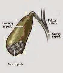 Obat Pemecah Batu Empedu Tradisional