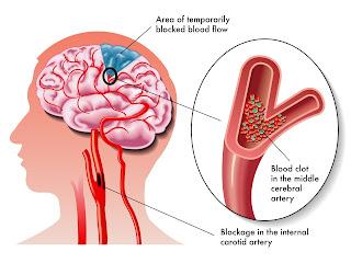 obat herbal untuk mengobati stroke berat, obat herbal untuk mengobati stroke, obat herbal mengobati stroke berat