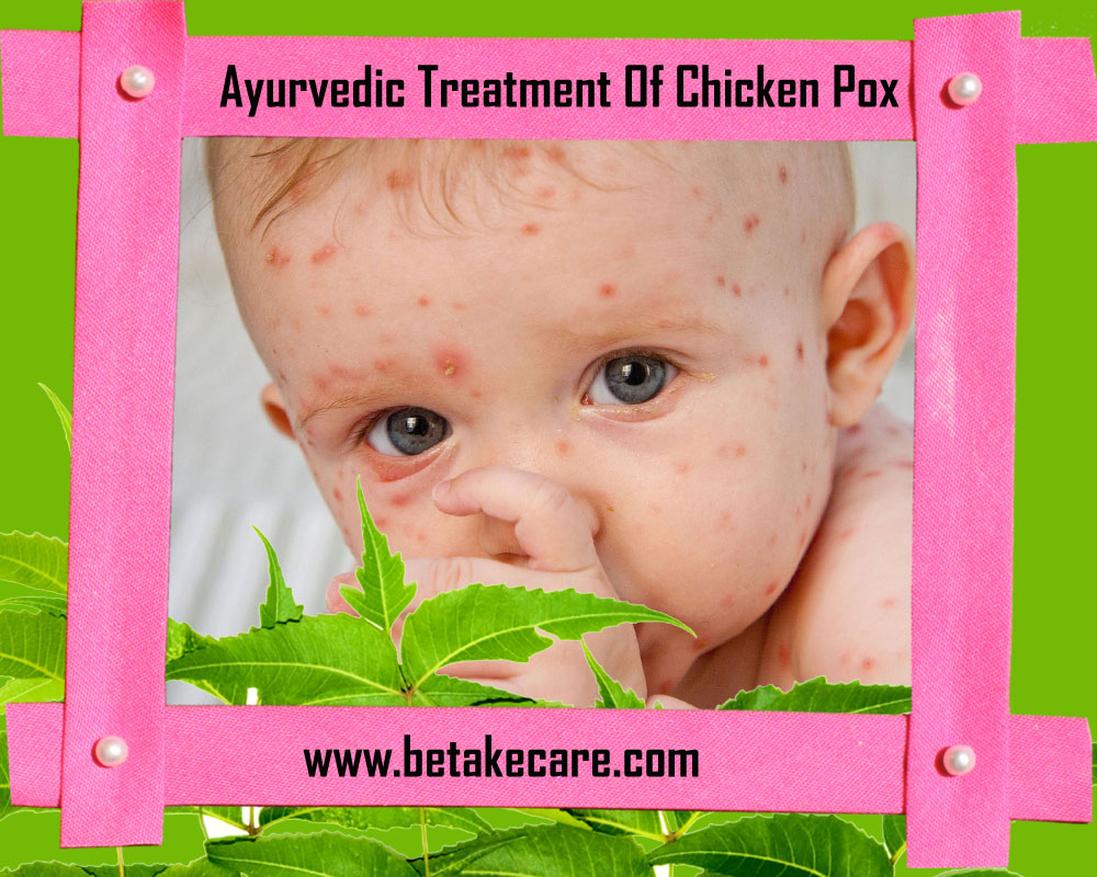 Ayurvedic Treatment Of Chicken Pox