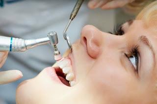 Ai phù hợp với lấy cao răng bằng máy siêu âm