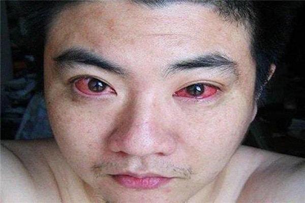 cancer ocular causado pela exposição a smartphone