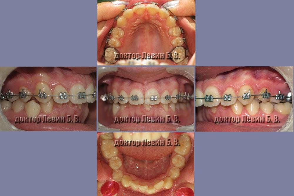 Фотография зубов пациента через шесть месяцев от начала лечения, установлены брекеты на верхние зубы.