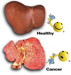 Obat Herbal Kanker Hati yang Ampuh dan Alami