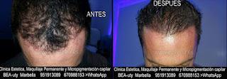 Micropigmentación capilar Granada CLÍNICA ESTÉTICA MARBELLA: Te ofrecemos la alta calidad de  nuestra asistencia, con los mejores expertos en micropigmentación capilar y maquillaje permanente en Granada y Marbella