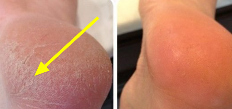 Get Rid Of Dry, Cracked Feet Quickly
