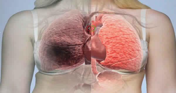 La cause du cancer du poumon a finalement découvert autre que tabagisme. Il est partout autour de vous!