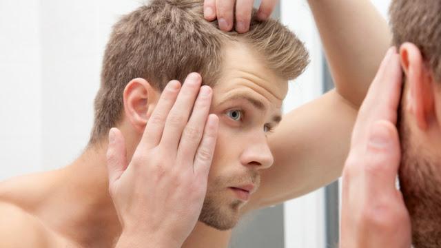 O problema dos tratamentos contra a calvície