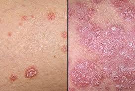 obat salep gatal jamur kulit sekitar kelamin