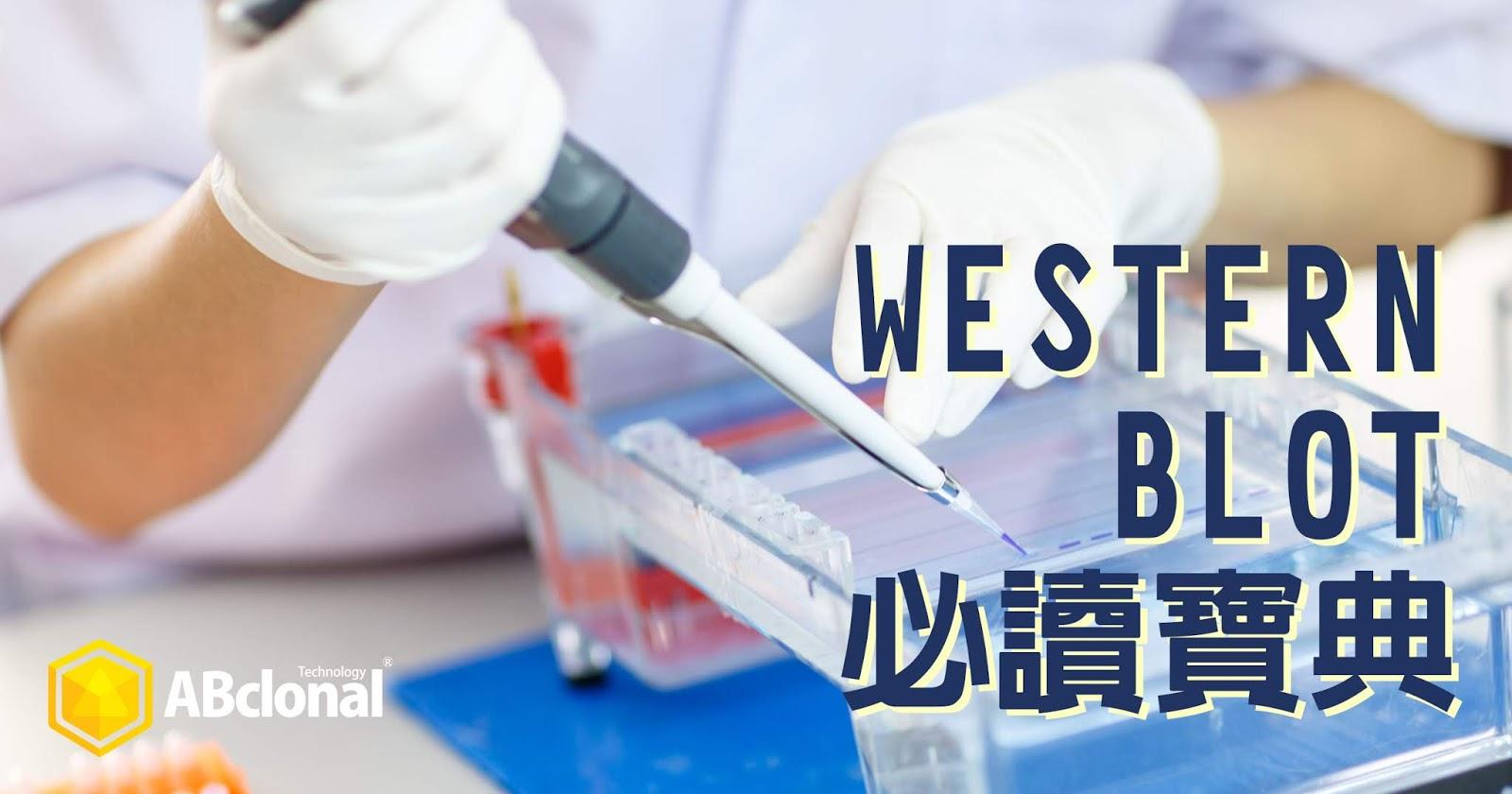 一篇搞懂Western Blot實驗流程步驟