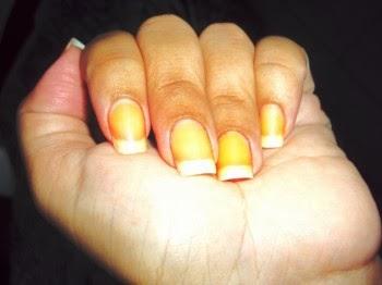Como eu faço para tirar manchas amarelas das unhas