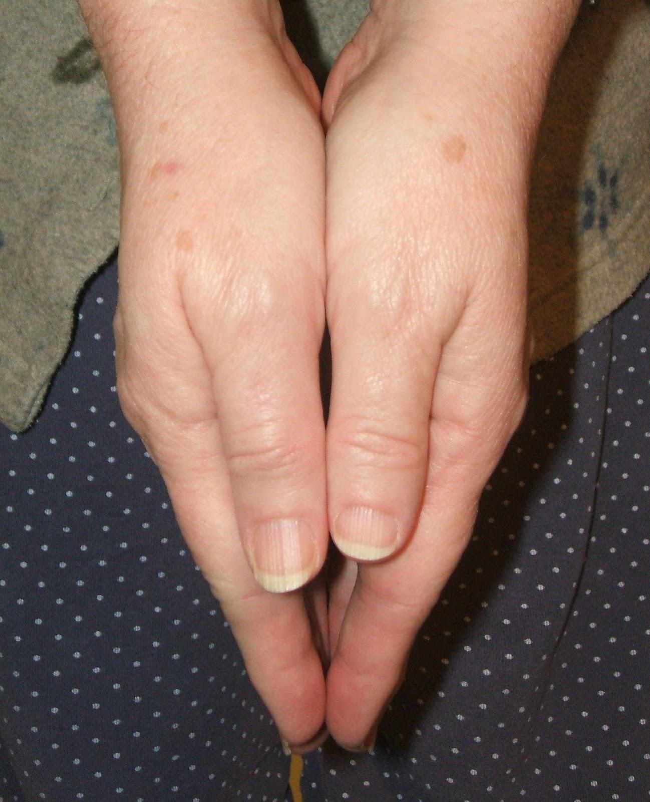 Megan Fox Clubbed Fingers
