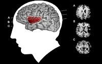 Informasi Rokok: Efek nikotin pada penderita DS