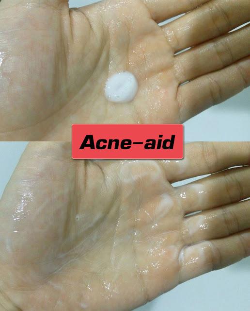 โฟมล้างหน้า Acne-aid liquid cleanser (ขวดสีแดง)