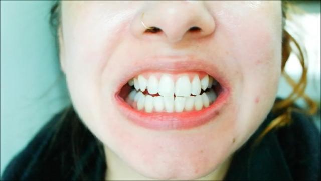 dentes mais brancos, creme dental clareador, gengivas mais saudáveis, adeus sangramento na gengiva, pasta de dente parodontax