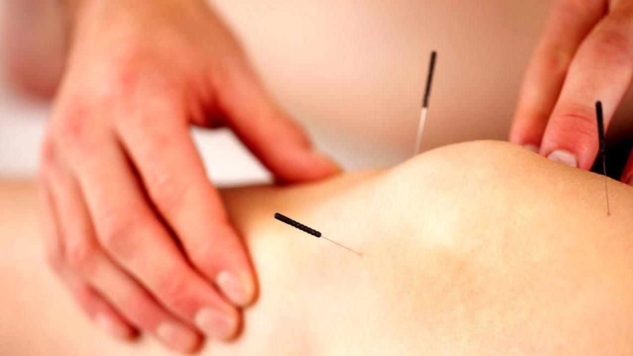 Acupuncture Points For Knee Pain - Knee Choices