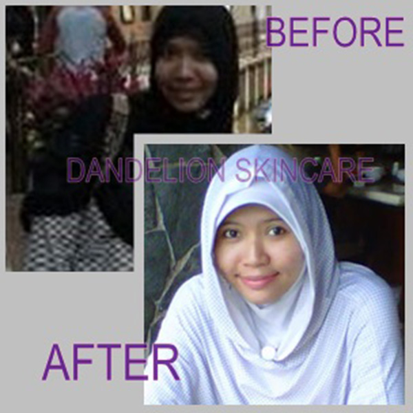 Dandelion Skincare