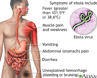 ebola virus,ebola,ebola,virus,ebola virus disease,ebola virus symptoms,what is ebola virus,ebola vaccine, ebola virus treatment,