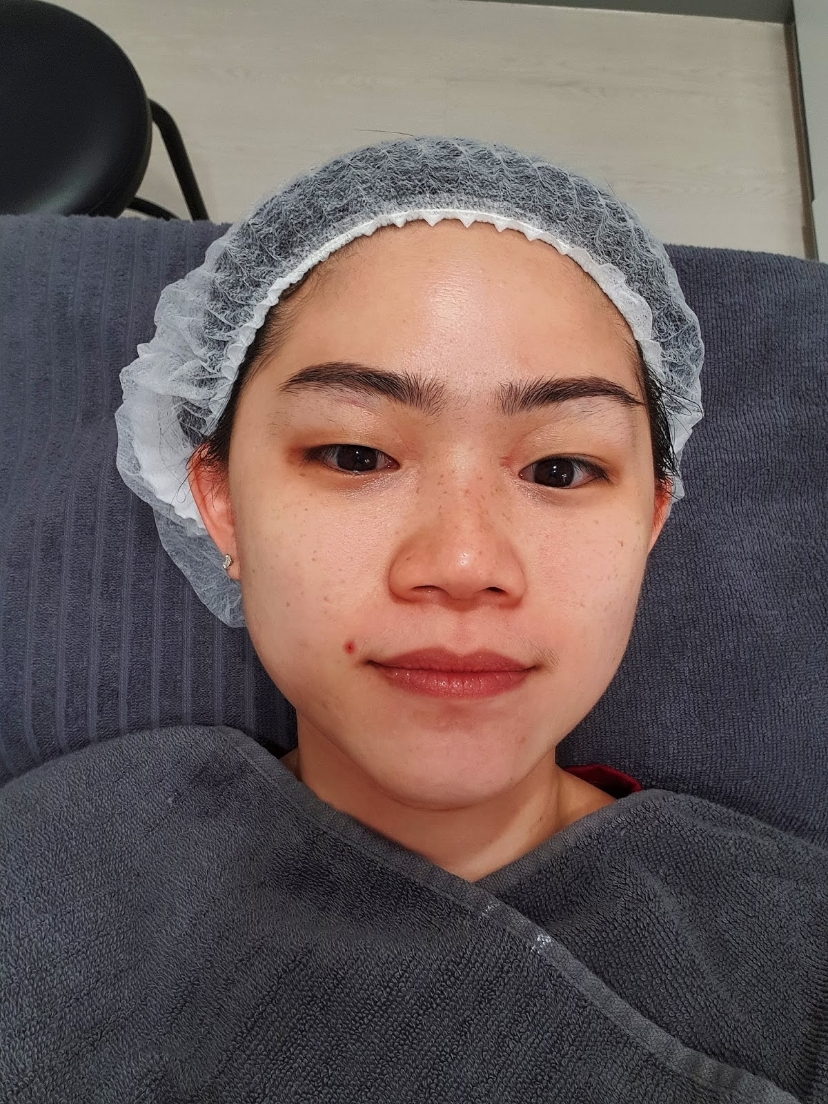 Looking At My Photo You Probably Know Why I Need To Do Pico Laser The Pigmentation Are Concentrated On Nose And Cheeks Areas Don T Agree That They