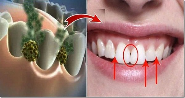 Get Rid Of Bad Breath In 5 Minutes