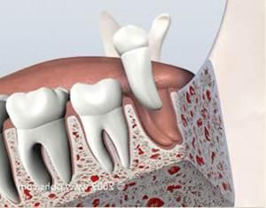 prise dentaire infectée