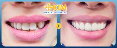 Hình ảnh trước và sau khi phục hình bằng răng toàn sứ