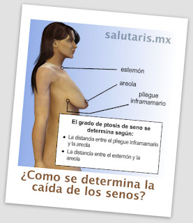 Como se determina la caida de los senos? Pexia Salutaris Guadalajara Mexico