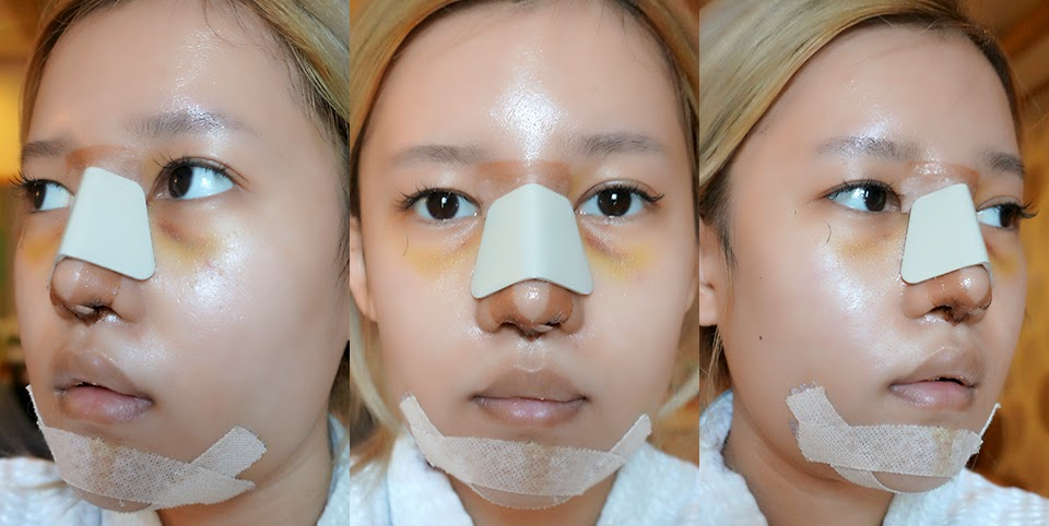 My Plastic Surgery in South Korea - Stella Lee ☆ Indonesia