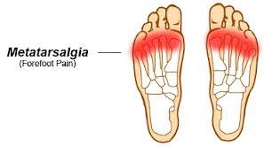 Middle Toe Bigger Than Big Toe