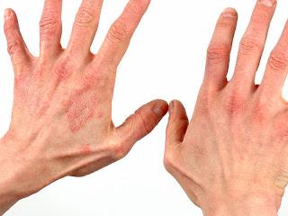 http://4.bp.blogspot.com/-MWYUCvCS_Vc/UmiubSq_I8I/AAAAAAAAAn0/nbpT5UEB85g/s320/hepatitis-c-liver-7512151.jpg