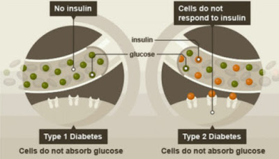asupan insulin diabetes