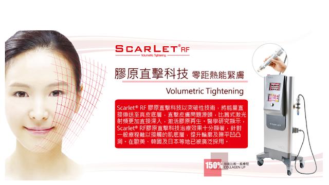 A-PLUS Beauty: 真人實證: 療程分享第一回 Scarlet® RF-AMTS (2015 Facial Case Study)